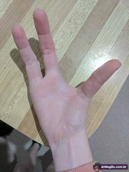 Ring On Right Pinky Finger